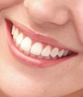 Smile Close Up