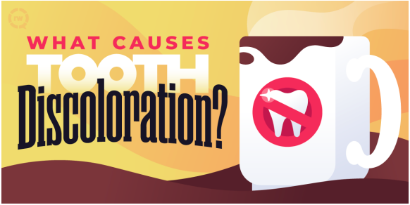 tooth discoloration graphic
