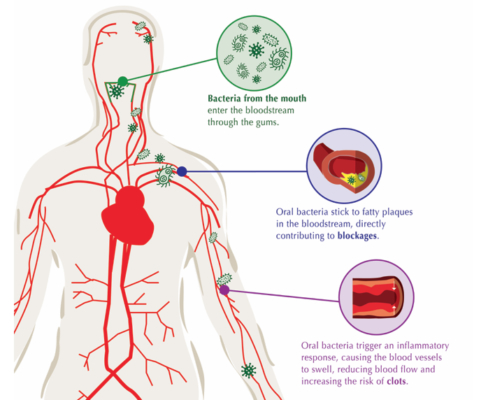graphic about gum and heart disease in the body