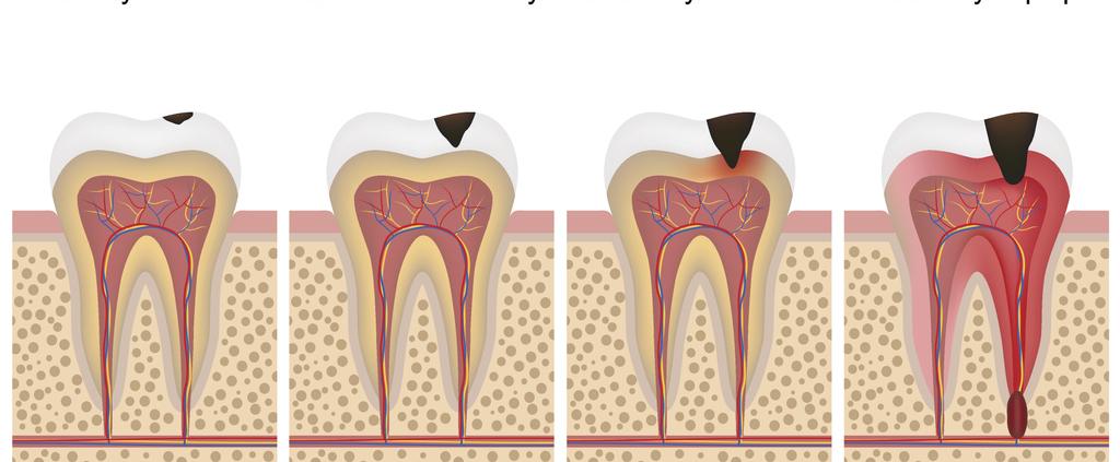 graphic of tooth decay